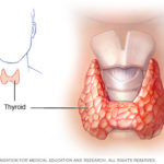 reasons to consume coconut oil thyroid